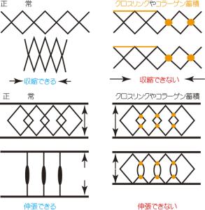 クロスリンクの図